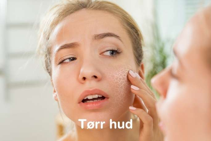 hudtyper tørr hud
